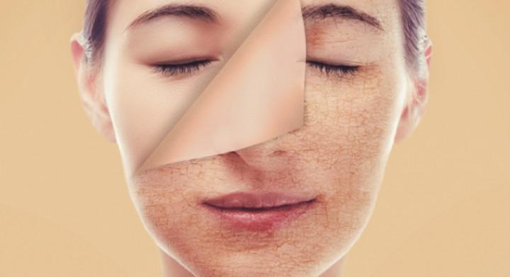 Thay da sinh học collagen giúp kích thích quá trình sản sinh collagen (minh họa)
